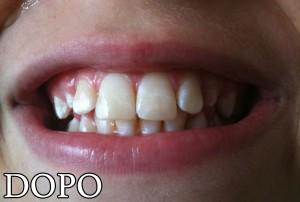 02-cura-dei-denti-dopo