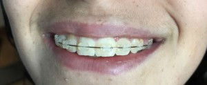 02-ortodonzia