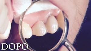 03-cura-dei-denti-dopo-b2